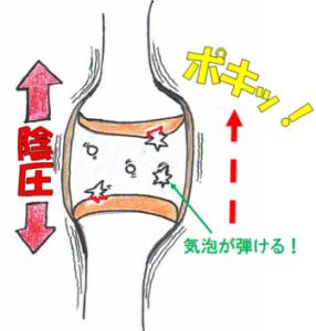 関節内のキャビテーション